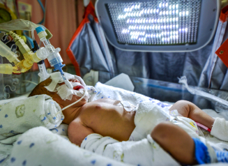 infant on a ventilator